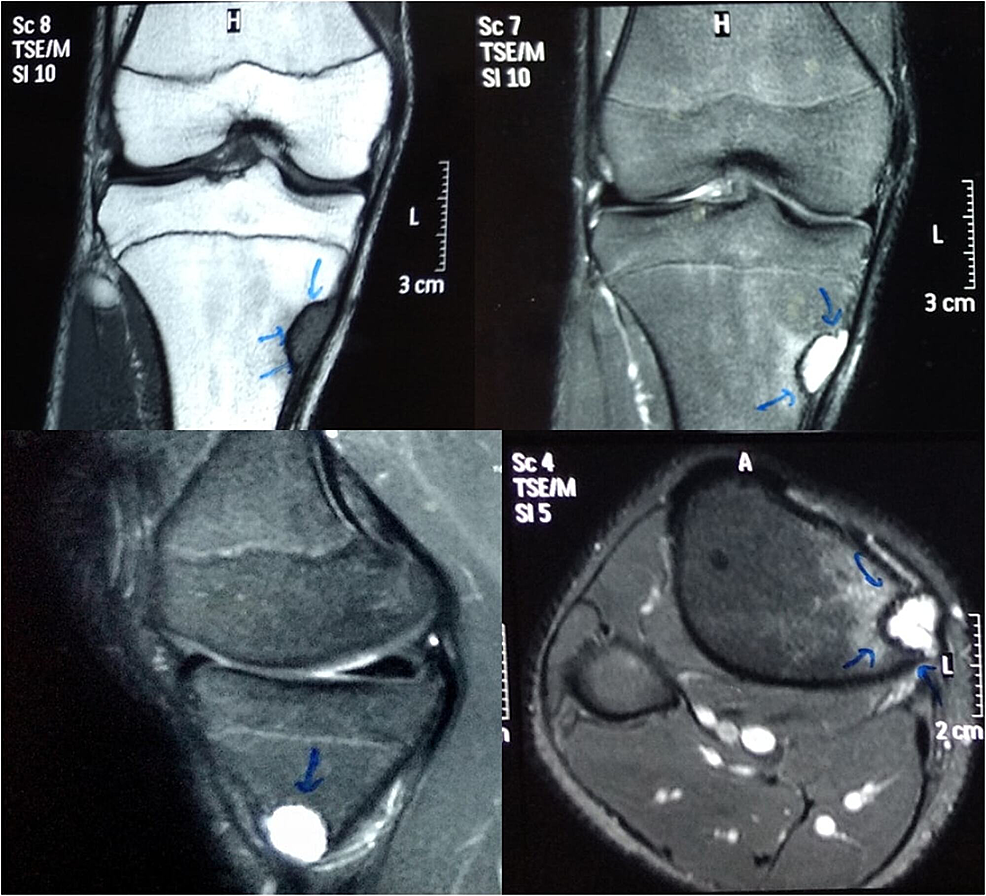 MRI-images-of-the-site-of-the-lesion
