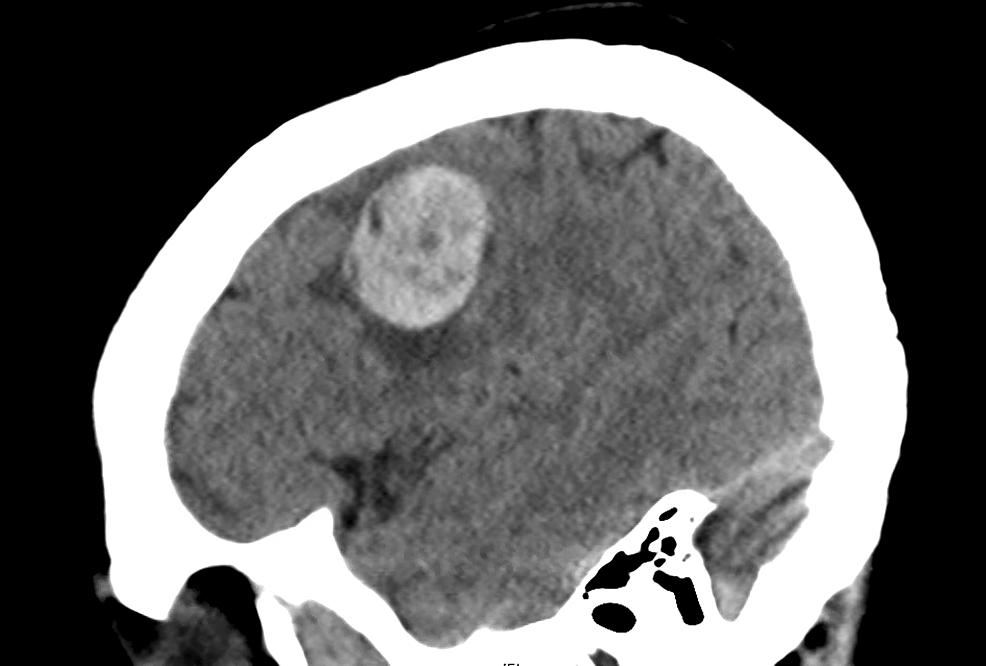 CT-scan-brain