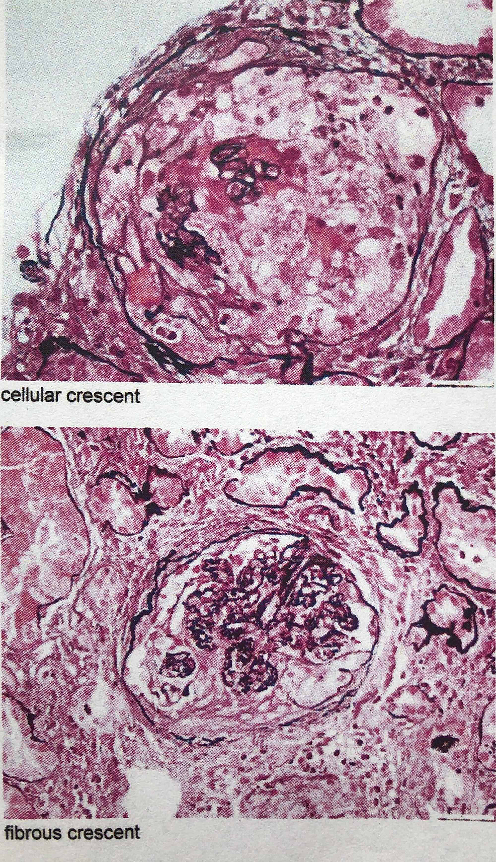 Renal-biopsy-images-showing-crescentic-glomerulonephritis