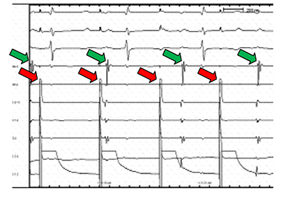 The-decapolar-electrode-recordings-documents-dissociation-(block)-of-conduction-in-the-ablation-zone.