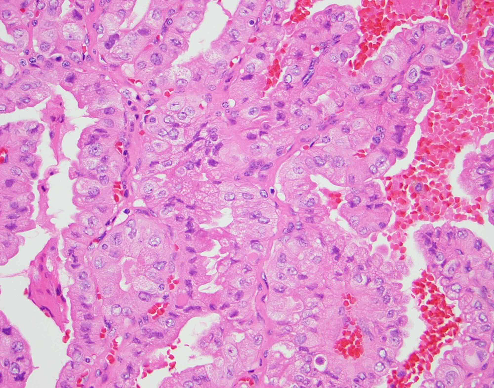 Pathology-from-fine-needle-aspiration.-Right-thyroid-lobe-(400x)-showing-polygonal-cells,-tall-cells-with-basilar-oriented-nuclei,-nuclear-pseudoinclusions-and-eosinophilic-cytoplasm-consistent-with-tall-cell-papillary-thyroid-carcinoma.