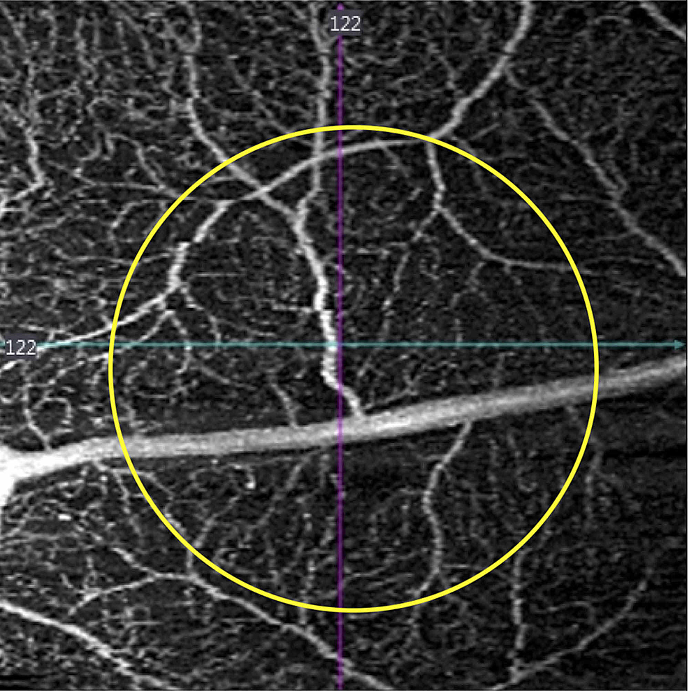 One-weekafter-injury,-composite-retinal-vascular-optical-coherence-tomography-angiography-slab-demonstrates-intact-retinal-vasculature-(yellow-circle-delineates-the-margins-of-laser-injury).