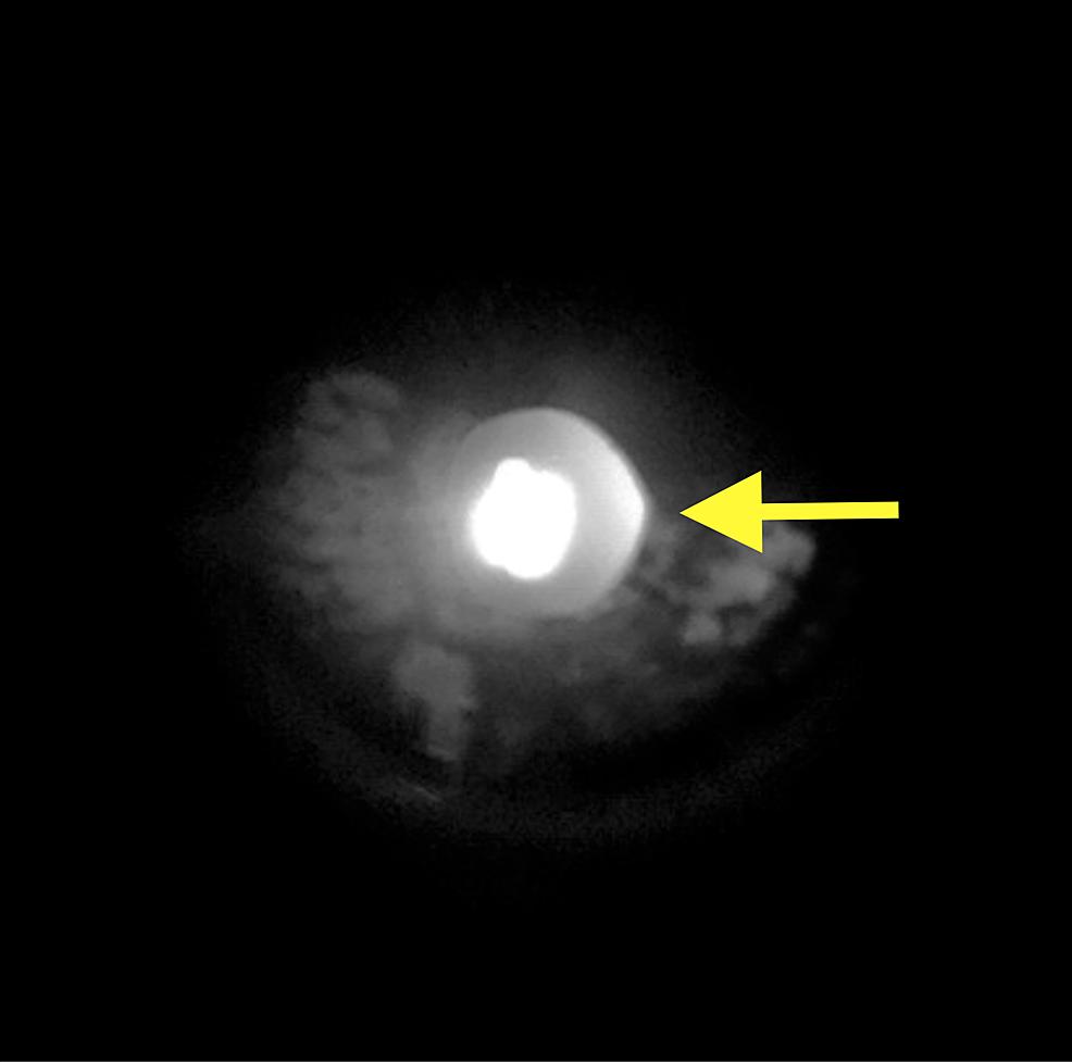 Left-eye-anterior-segment-photo-demonstrating-irregular-pupil-and-extensive-iris-atrophy-(yellow-arrow).-