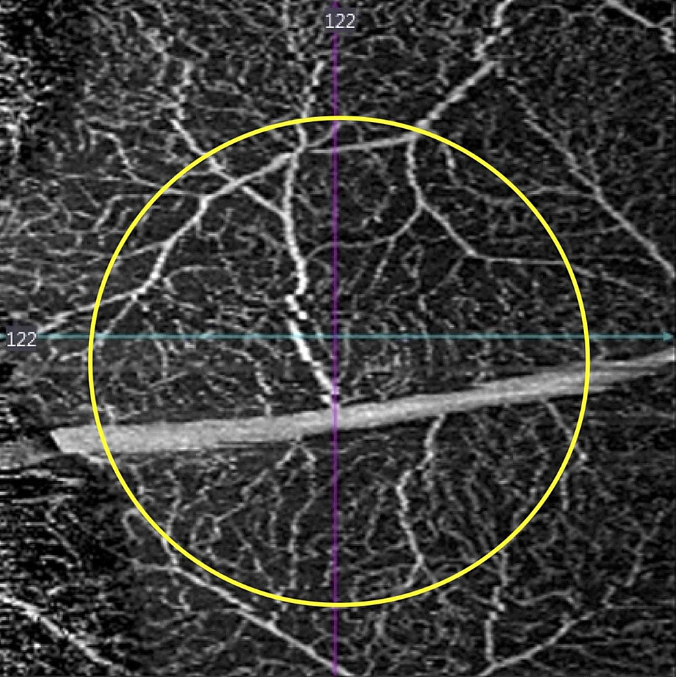 Sixty-two-days-after-injury,-composite-retinal-vascular-optical-coherence-tomography-angiography-slab-demonstrates-intact-retinal-vasculature-(yellow-circle-delineates-the-margins-of-laser-injury).