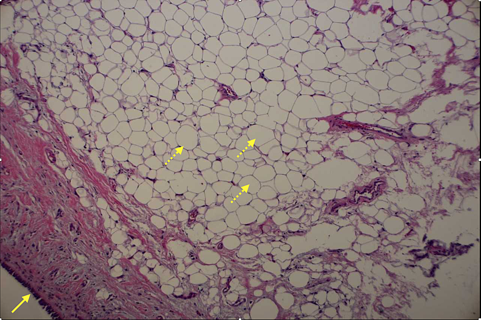 Endobronchial-mass-biopsy-(stained-with-hematoxylin-and-eosin)
