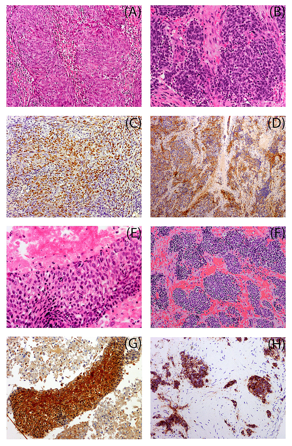 Immunohistochemical-Stains-of-Primary-and-Secondary-Malignancies-of-Two-Cases