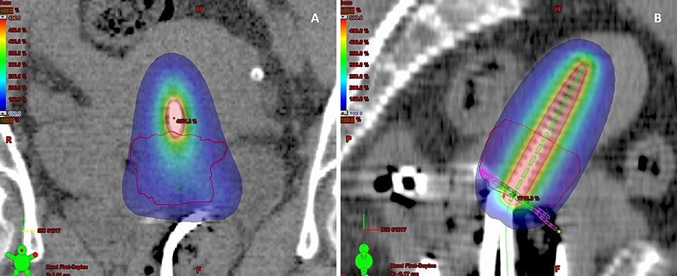 CT-image-(A,-B)-showing-coverage-of-HRCTV-(<25cc)-by-100%-isodose-color-wash