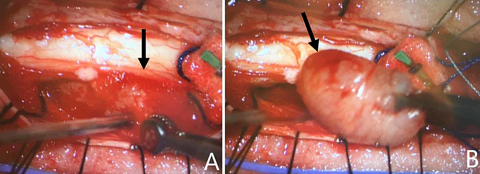 Intra-operative-posterior-exposure-at-level-of-T9-after-completion-of-laminectomy-and-durotomy.-Identification-of-T9-mass-(A)-with-removal-of-encapsulated-mass-(B).