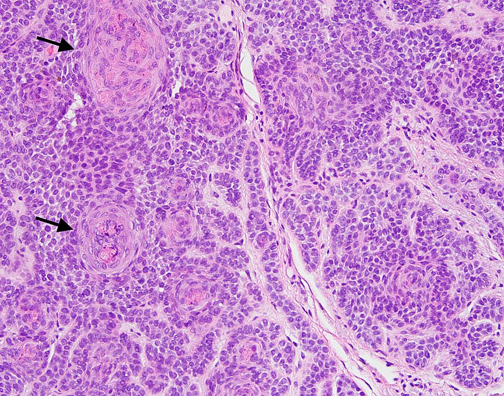 High-power-view-of-skin-biopsy