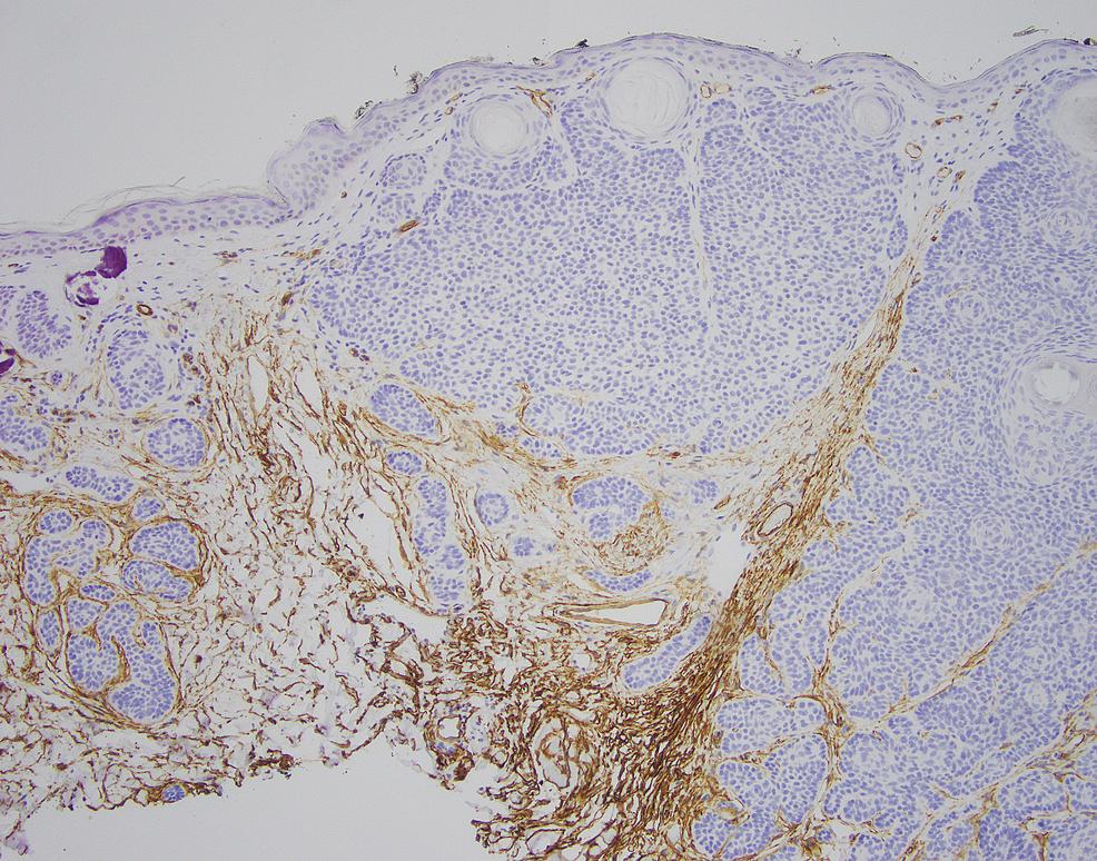 CD34-immunohistochemistry-of-skin-biopsy