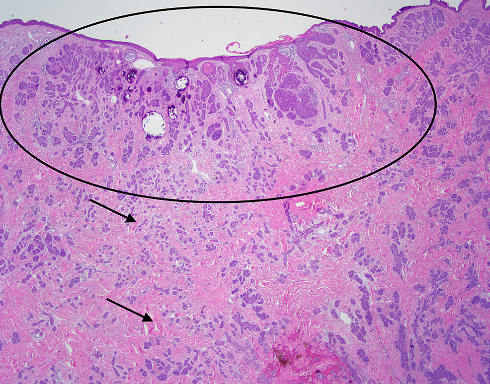 Excisional-biopsy