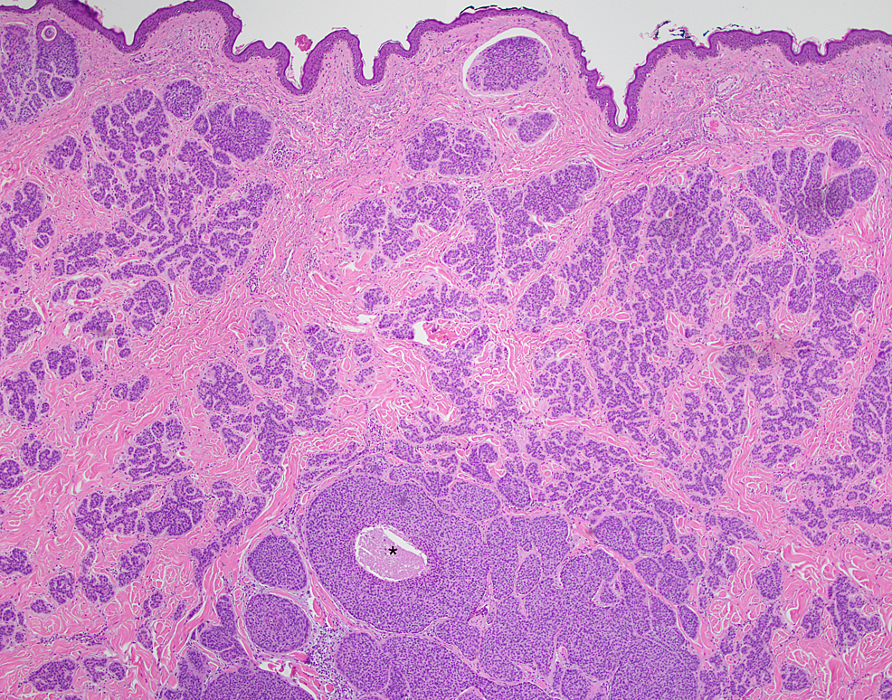 Excisional-biopsy,-low-power-view