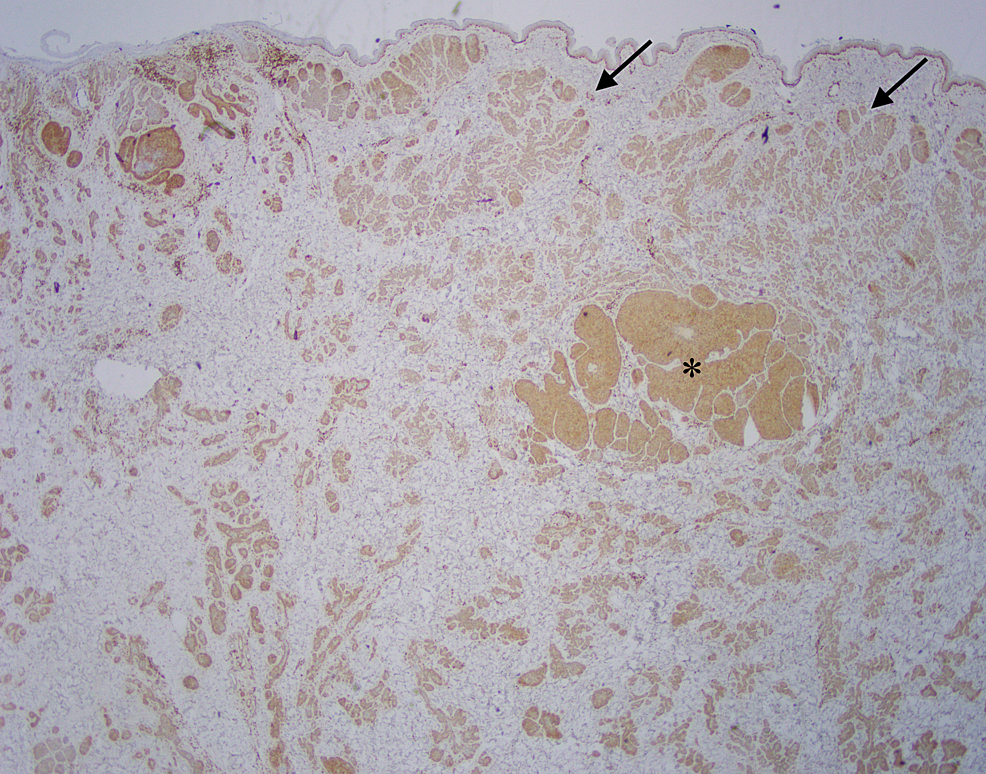 Excisional-biopsy,-Bcl-2-immunohistochemistry-
