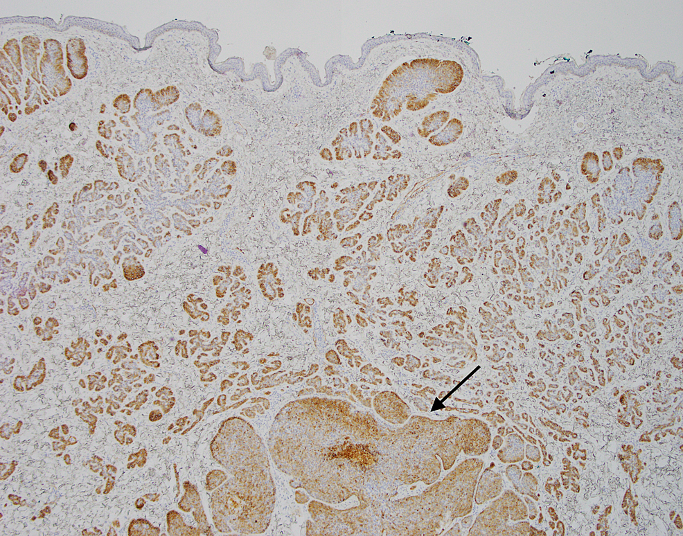 Excisional-biopsy,-CD10-immunohistochemistry