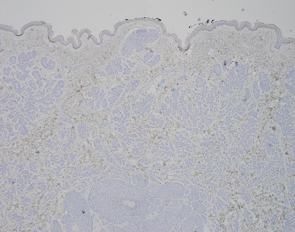 Excisional-biopsy,-CK20-immunohistochemistry