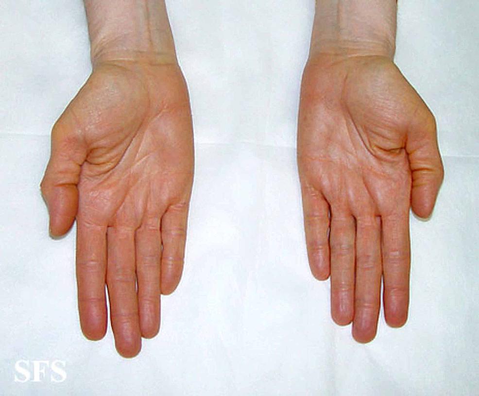 Carotenemia-of-the-palms