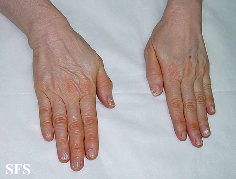 Carotenemia-of-the-dorsum-of-the-hands