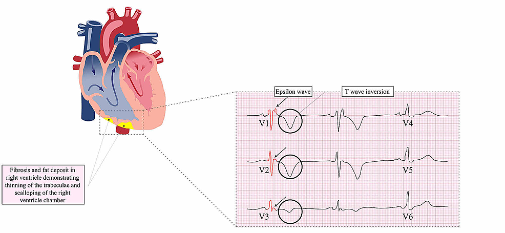 Fat-deposits-in-the-right-ventricle-and-EKG-changes-in-ARVC,-including-Epsilon-waves-and-T-wave-inversions-in-leads-V1-V3