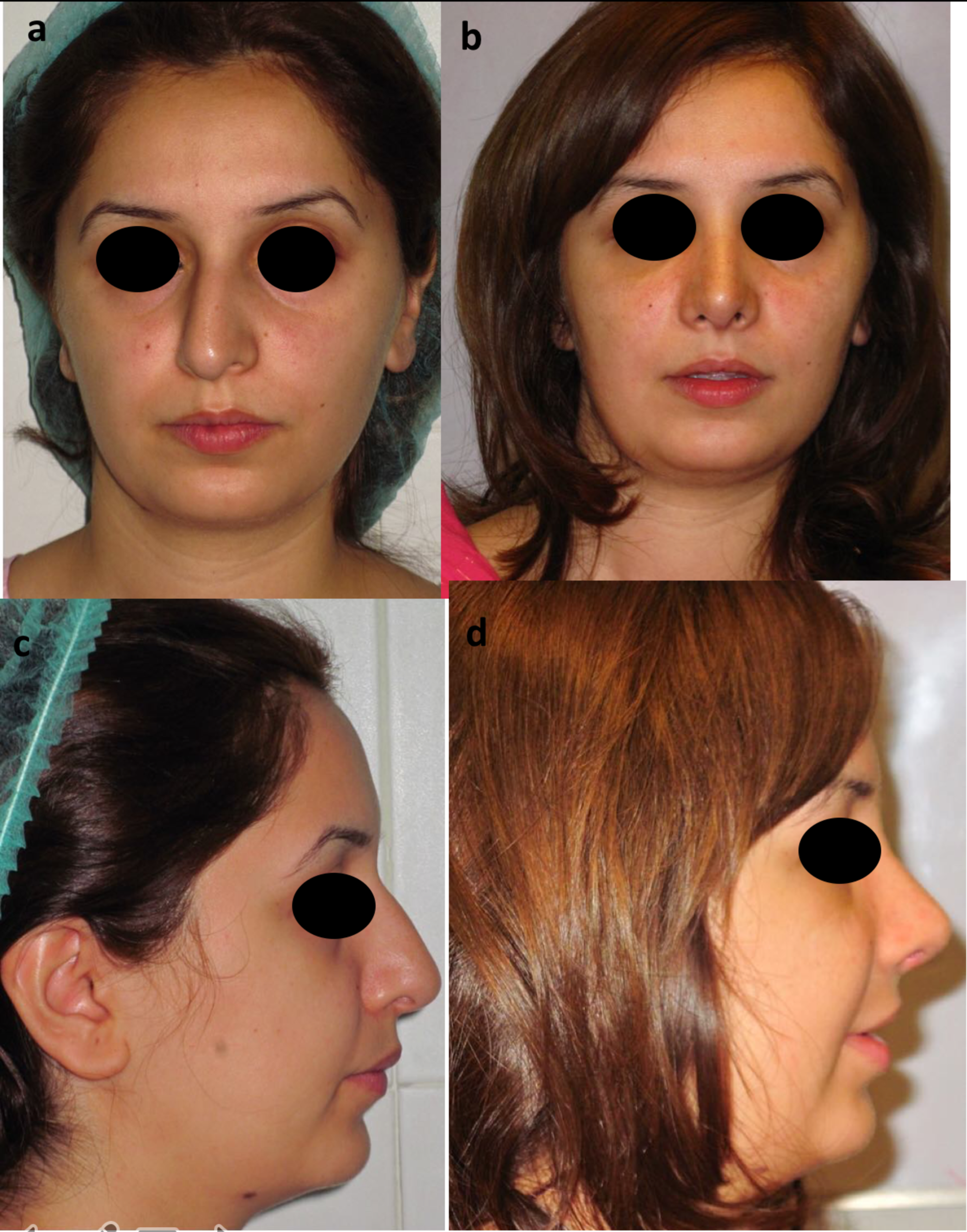 Cureus Satisfaction In Patients After Rhinoplasty Using The Rhinoplasty Outcome Evaluation Questionnaire