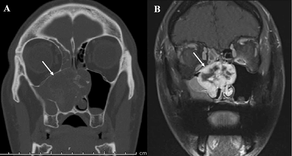 CT-and-MR-imaging.-(A)-Contrast-enhanced-CT-scan-demonstrating-an-expansile-mass-centered-within-the-right-nasal-cavity-with-extension-into-the-left-nasal-passage-(white-arrow),-with-scattered-calcifications.-(B)-The-same-mass-(white-arrow)-observed-on-contrast-enhanced-T1-weighted-MRI-with-heterogeneous-uptake.
