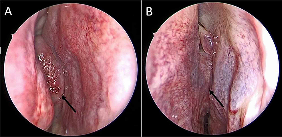Intraoperative-photos.-(A)-Endoscopic-view-demonstrating-a-mass-(black-arrow)-within-the-right-nasal-cavity-at-the-level-of-the-middle-meatus.-(B)-Endoscopic-view-demonstrating-extension-of-the-mass-(black-arrow)-across-the-nasal-septum-to-involve-the-left-nasal-cavity.