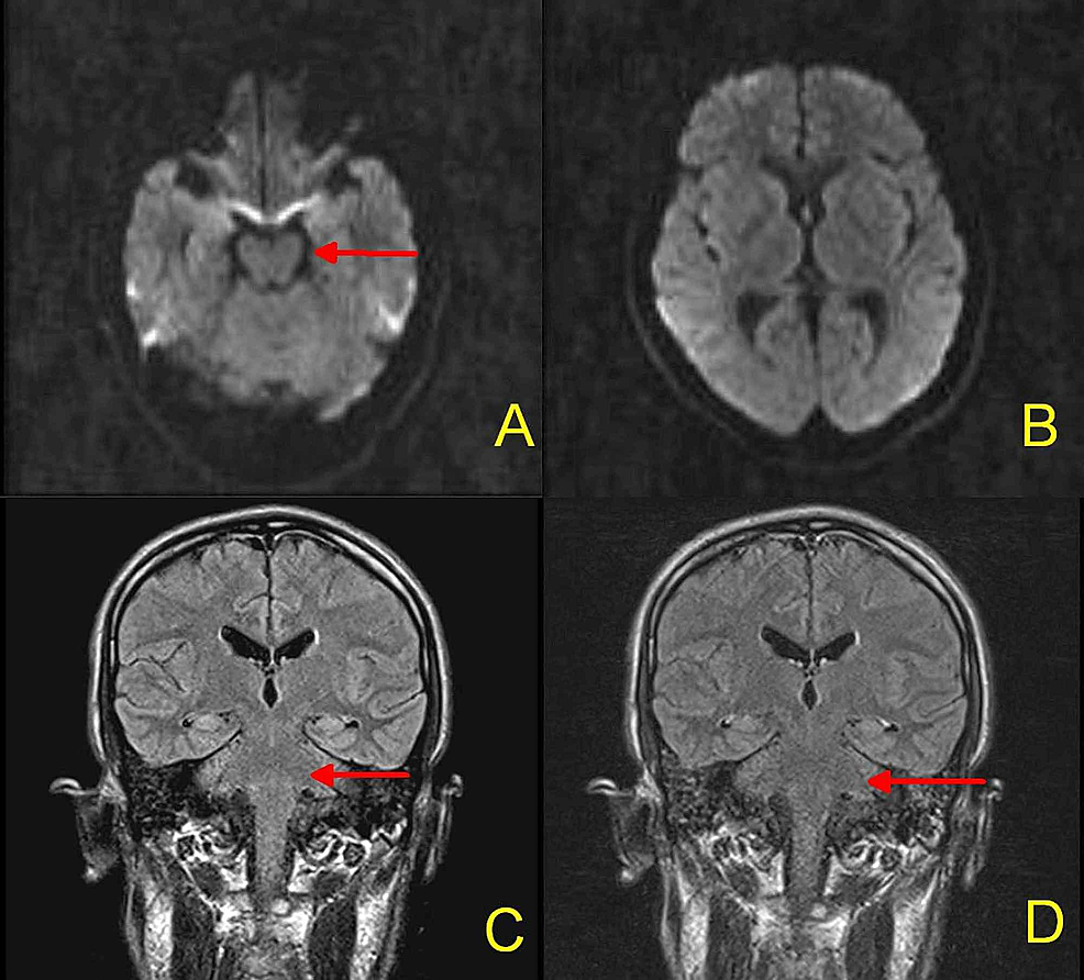 MRI-Brain:-No-acute-ischemic-stroke-on-DWI-sequences-(Figure-1A,-1B).-No-abnormal-signals-on-pre-contrast-(-Figure-1C)-or-post-contrast-FLAIR-sequence-(Figure-1D).-Red-arrows-indicate-brainstem,-which-is-normal