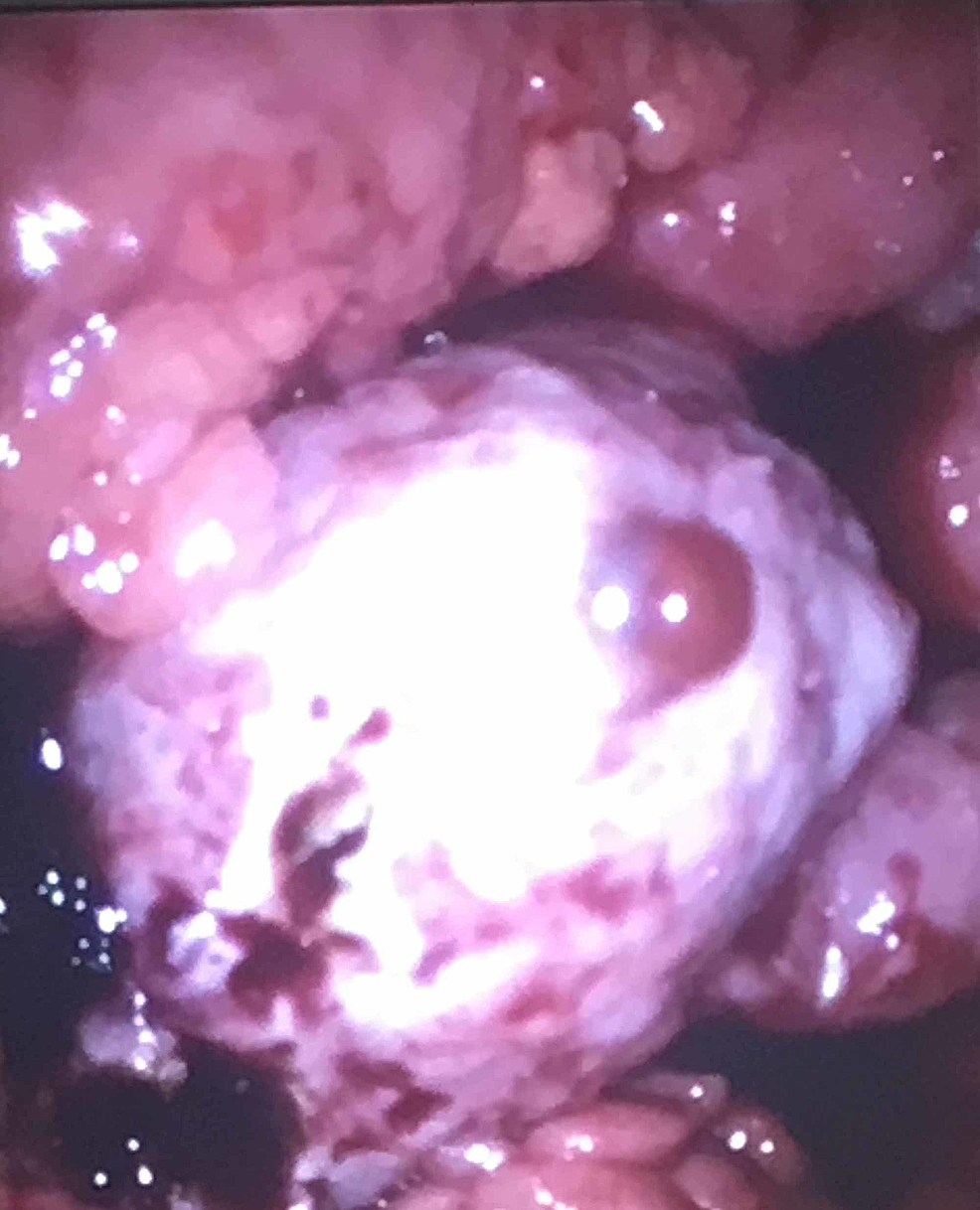 Intraoperative-view-of-the-left-ovary