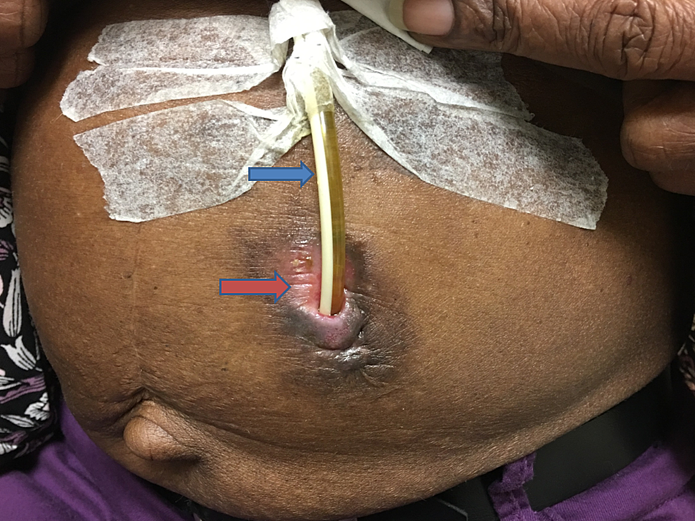 Image-of-the-abdomen-showed-replacement-PEG-tube-placed-in-situ-at-the-left-upper-quadrant.-Blue-arrow-indicates-PEG-tube-and-red-arrow-indicates-the-clean-and-uninfected-peristomal-area.-