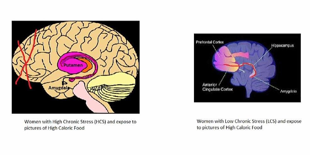 Brain-structure-between-women-with-high-chronic-stress-(HCS)-and-women-with-low-chronic-stress-(LCS).-