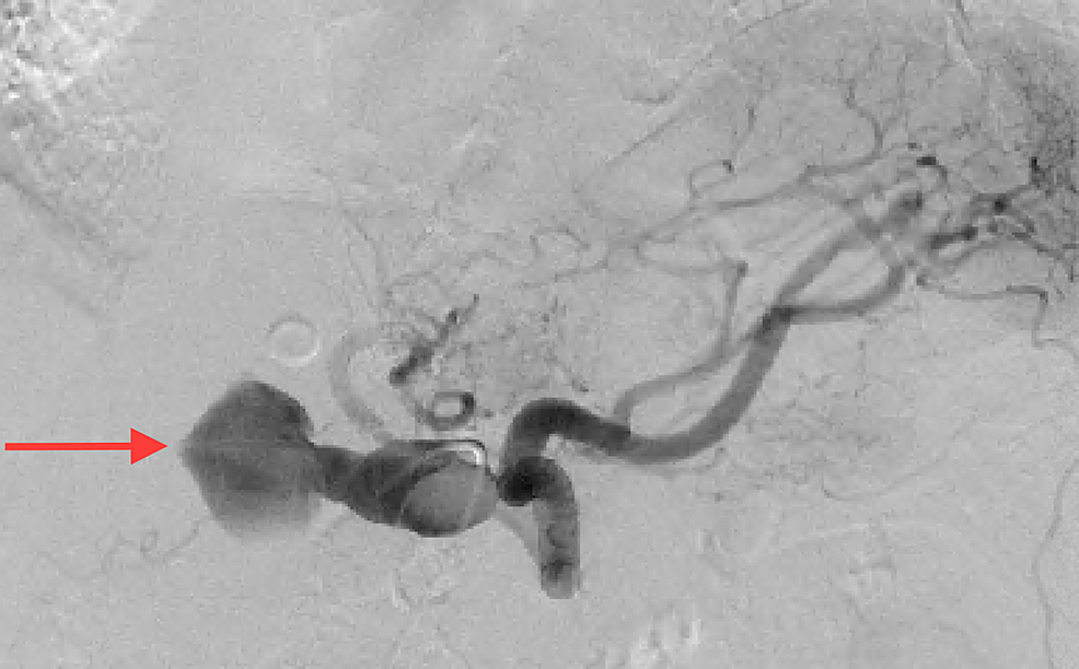 Aortogram-with-selective-celiac-arteriography-demonstrating-an-enlarged-fusiform-common-hepatic-artery-aneurysm