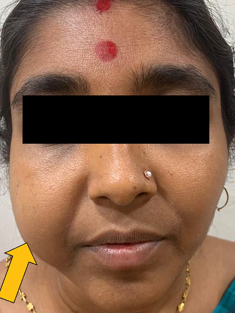 Extraoral-view-showing-swelling-in-the-right-cheek-region.