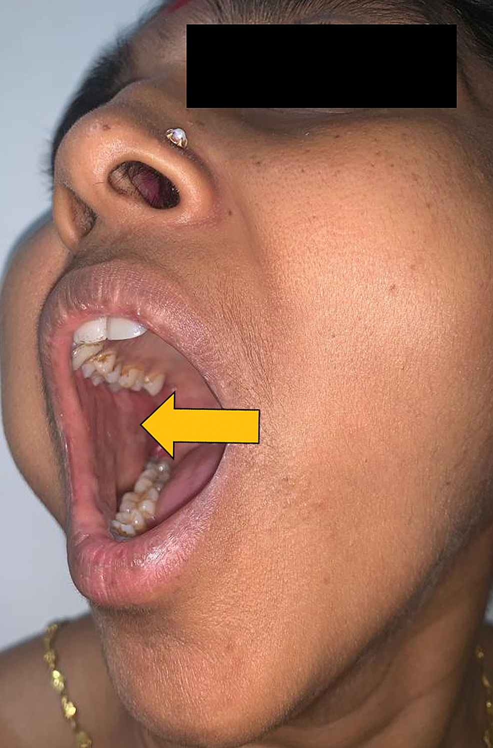 Intraoral-view-reveals-intact-healthy-mucosa-over-the-mass.