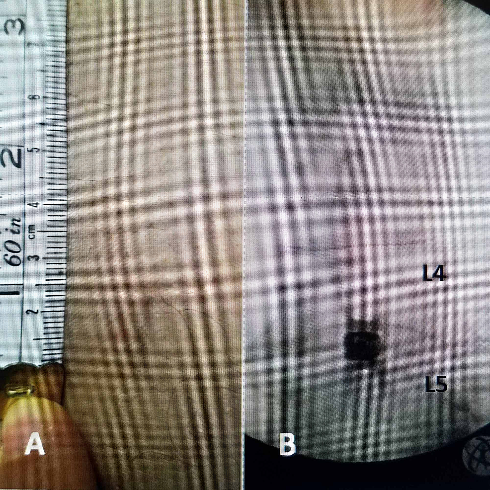 Skin-issue-of-15-mm-for-insertion-of-L4-5-Vertiflex®-interspinous-implant