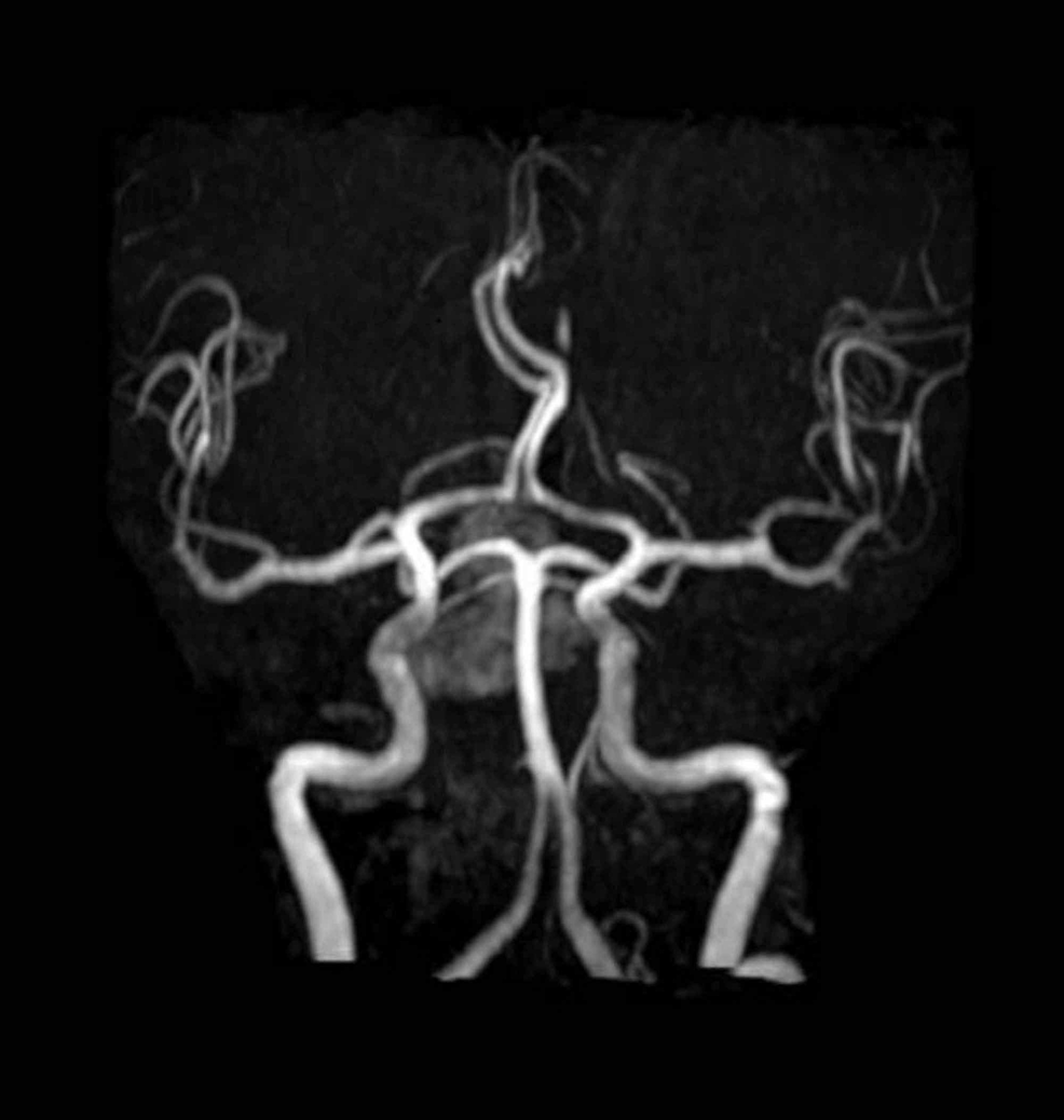 Normal-MR-angiogram