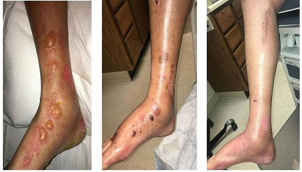 Edematous-lesions