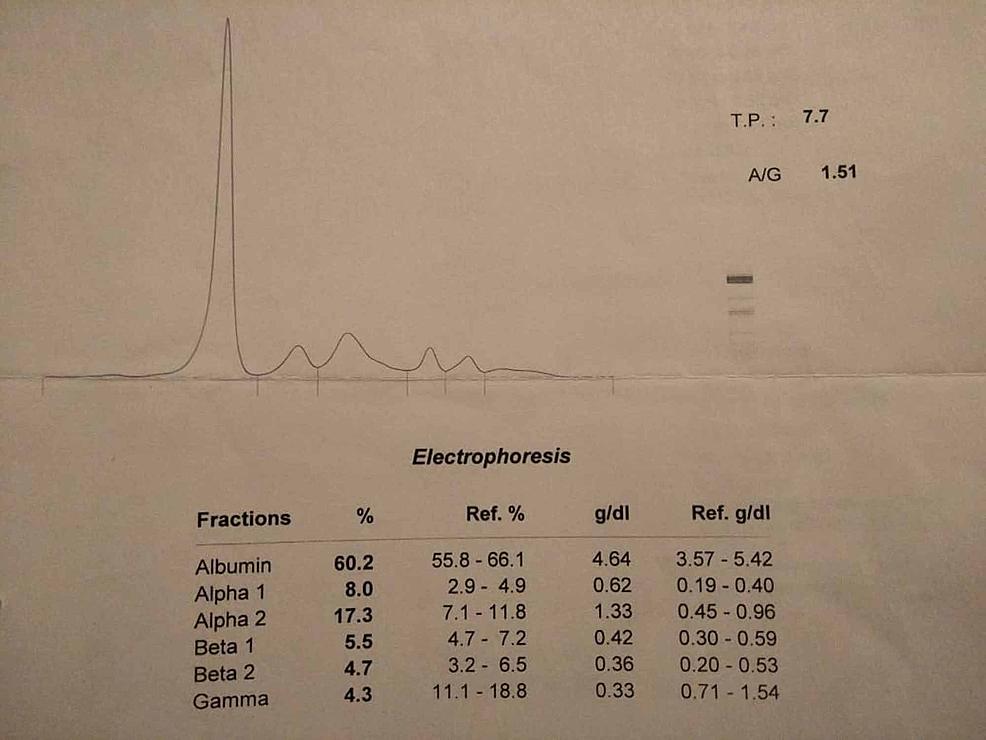 Serum-protein-electropheresis