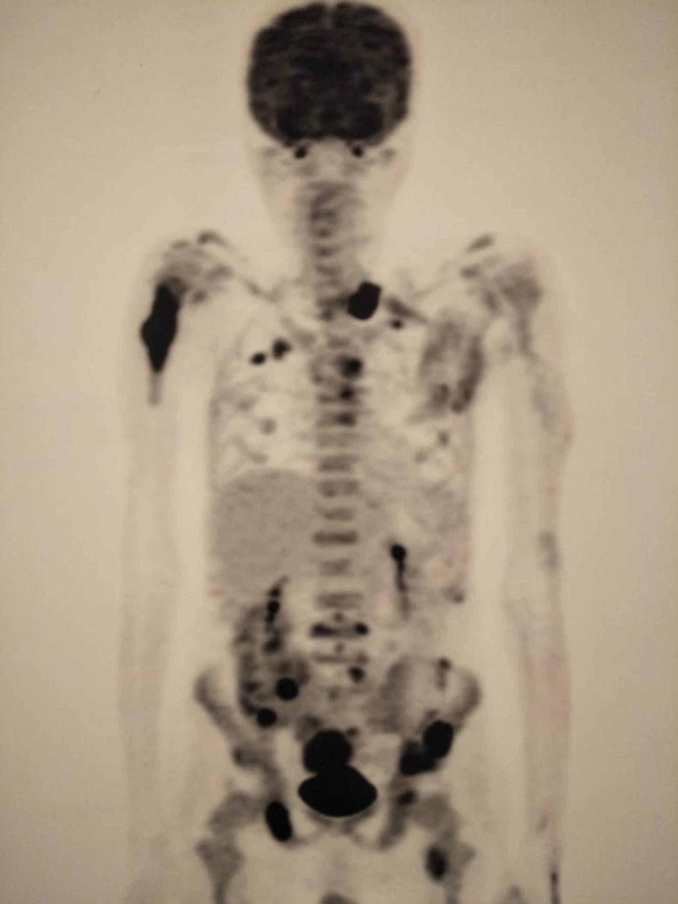 Positron-emission-tomography