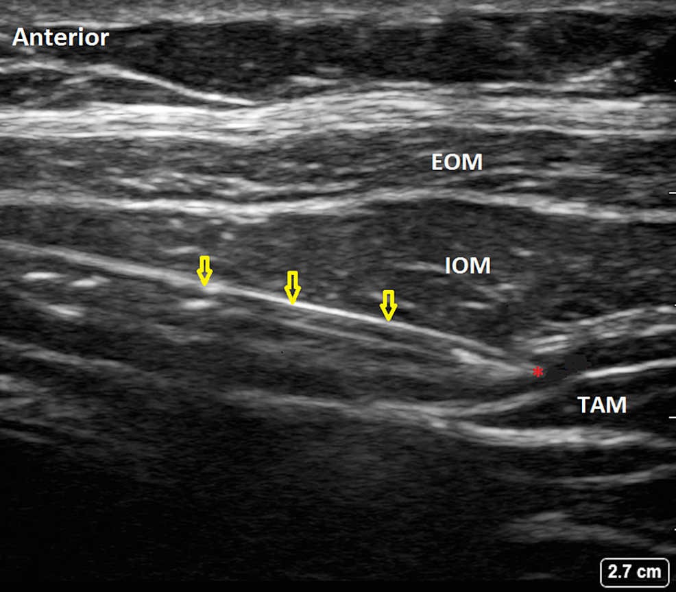 Ultrasound-guided-Transversus-Abdominis-Plane-(TAP)-Injection.