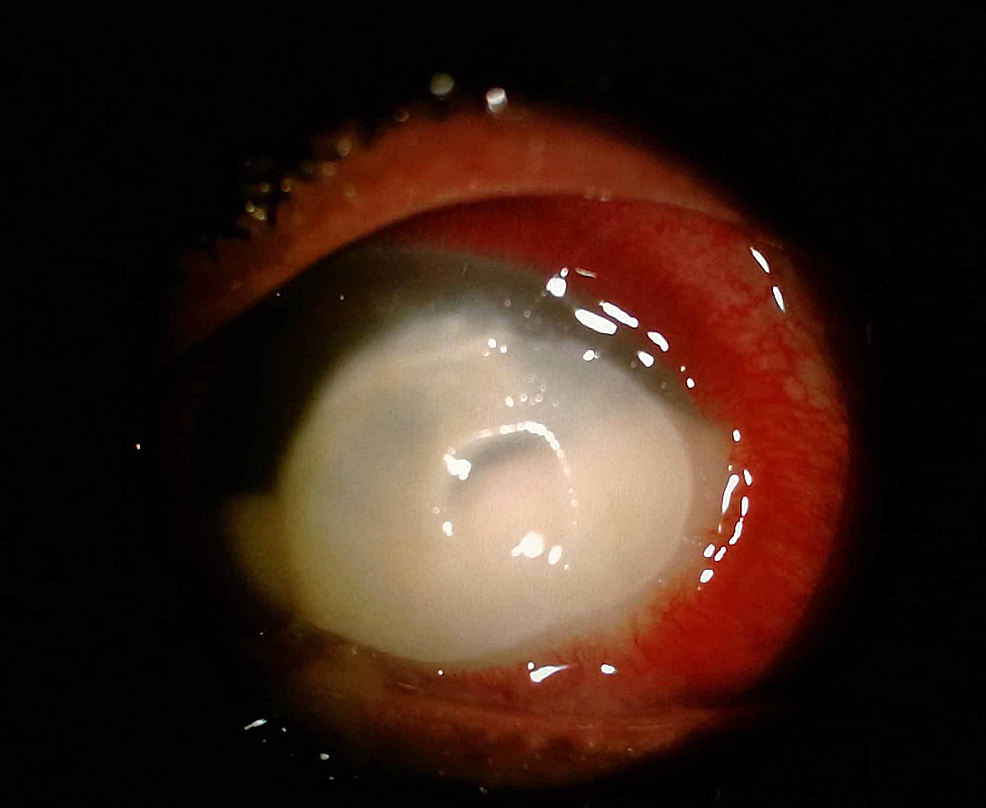 Slit-lamp-examination-showed-a-dense-central-stromal-infiltrate-with-central-thinning-and-dense-epithelial-plug.