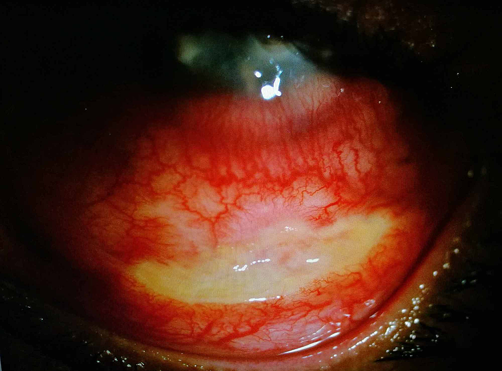 Slit-lamp-examination-showed-necrosis-of-inferior-bulbar-conjunctiva-which-corresponds-to-the-site-of-injections.-There-was-no-scleral-inflammation.