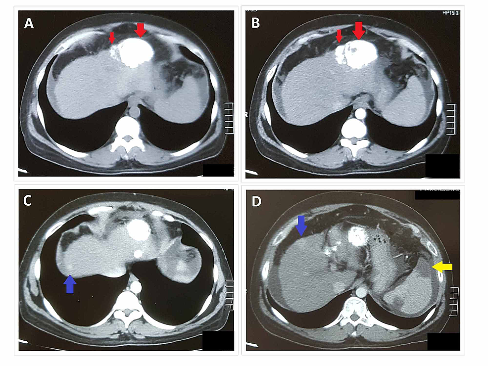 Triphasic-CT-abdomen-at-one-month-follow-up-after-TACE-showing-two-areas-of-dense-hyperdensities-(red-arrows-in-A-and-B)-in-the-left-lobe-of-the-liver-at-site-of-previous-HCC-representing-lipoidal-deposition-(status-post-TACE)