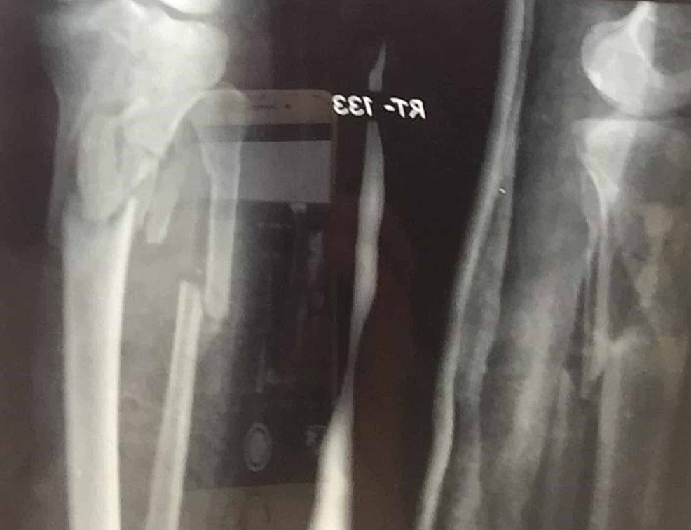 Preoperative-plain-radiograph-of-one-patient-showing-a-comminuted-tibial-plateau-fracture,-Shatker's-type-VI,-along-with-a-fracture-of-the-proximal-part-of-the-fibula