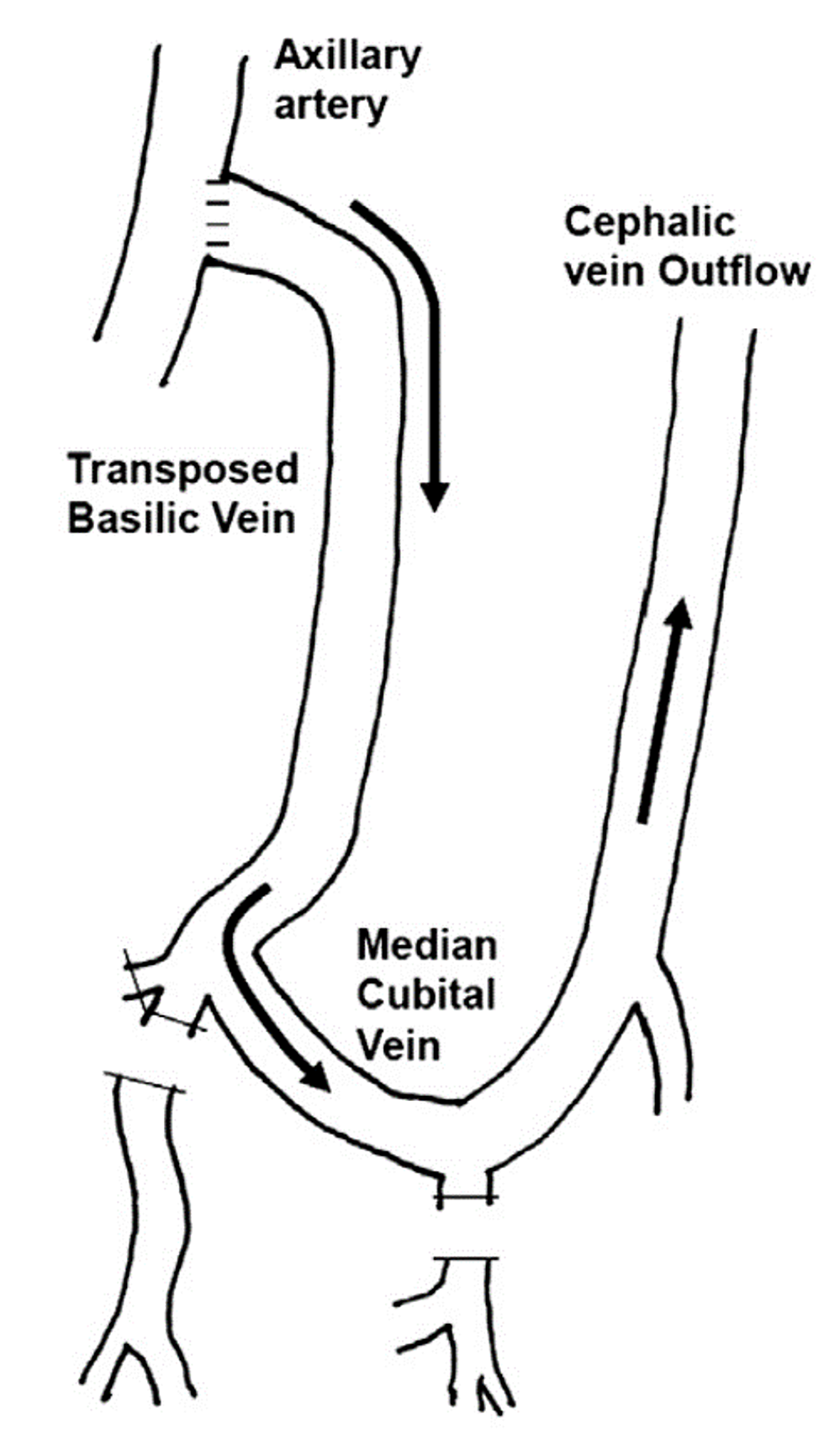 Proximalization-of-arterial-inflow.