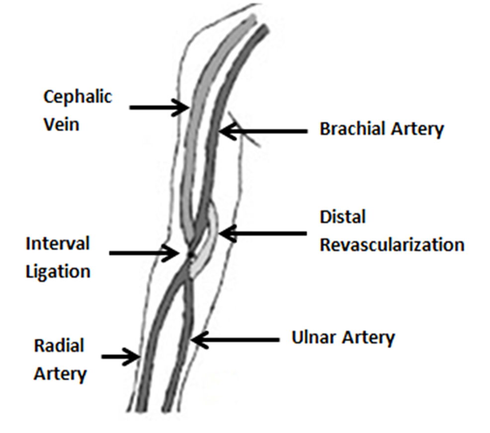 Distal-revascularization-and-interval-ligation.