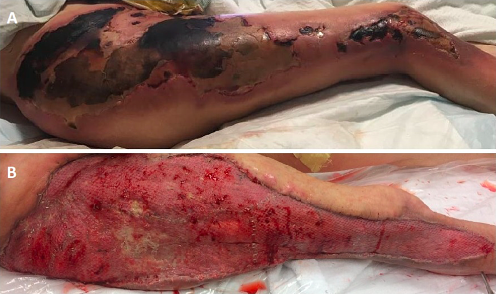 Injuries-at-initial-presentation-(A)-and-after-definitive-wound-closure-with-split-thickness-skin-grafting-(B)
