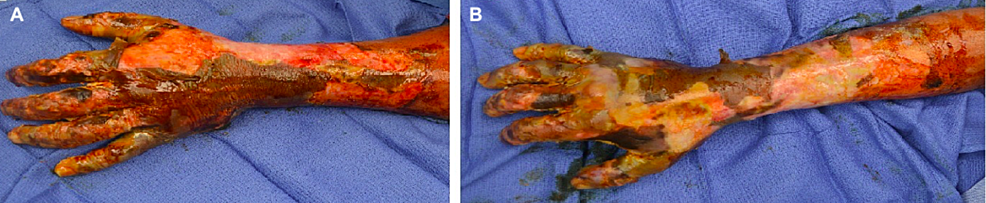 Injuries-at-the-time-of-initial-debridement-on-left-hand-(A)-and-right-hand-(B)