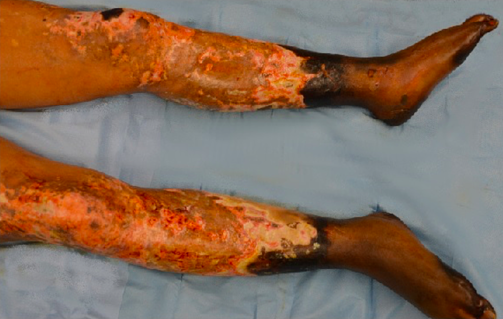 Lower-extremity-before-initial-debridement