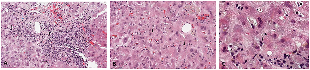 Initial-Liver-Biopsy---1A:-Predominant-lymphocytic-interface-hepatitis-(black-arrow),-with-few-plasma-cells-(blue-arrow)-and-bile-duct-injury-(arrowhead).-1B,-1C:-Canalicular-bile-plugs,-consistent-with-acute-cholestasis