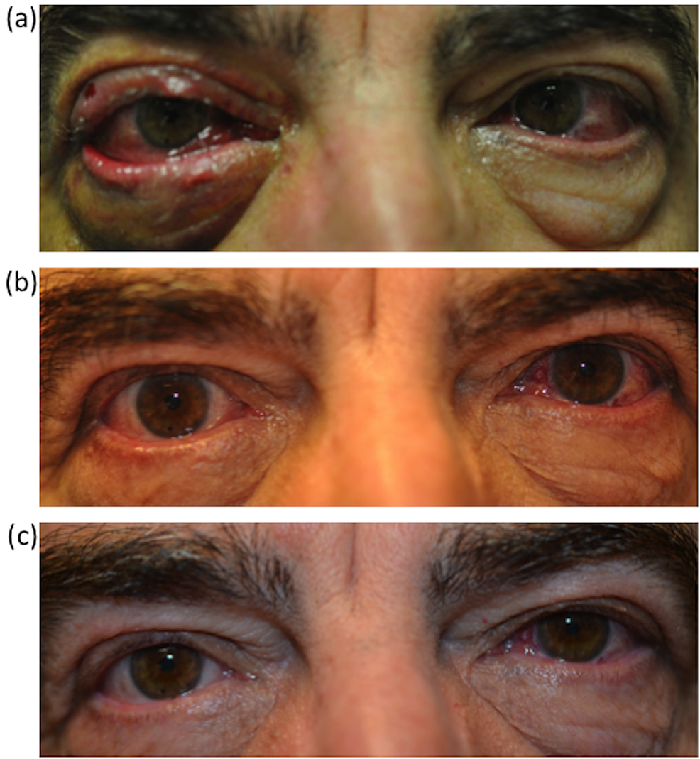 Ophthalmology-Follow-up-Images