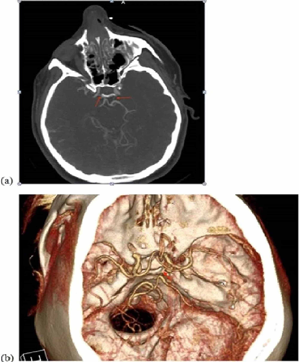 CT-angiography-of-the-brain:--(a)--axial-cut-with-arrows-indicating-the-right-and-left-posterior-communicating-arteries,-respectively.--(b)-CT-angiography-reconstruction-demonstrating-a-patent-right-posterior-cerebral-artery.